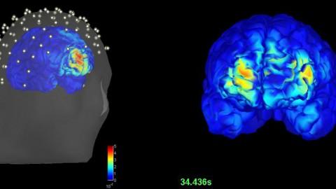 Nuevo modo de detectar epilepsia sin intervención quirúrgica
