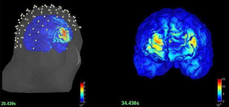 EpilepsiaEEGRMN