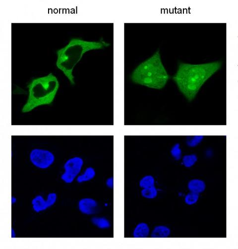 Software bioinformático para predecir el efecto de mutaciones asociadas a cáncer