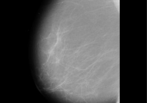 Un nuevo programa de análisis de imágenes permite un acierto del 99% en el diagnóstico de algunos tumores del cáncer de mama