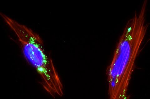 De la nanopartícula al tumor a bordo de una célula madre de placenta