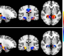 Inteligencia artificial para ayudar a diagnosticar el Mal de Alzheimer
