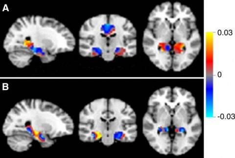 IA-Alzheimer