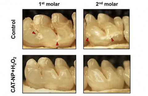 Nanopartículas para destruir la placa dental y las bacterias culpables de ella