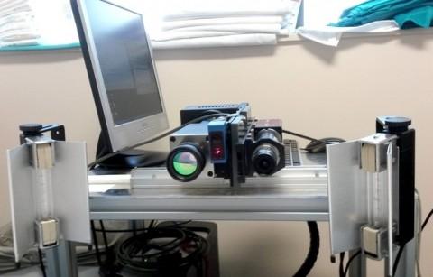 Investigadores desarrollan un pre-prototipo para la detección del melanoma