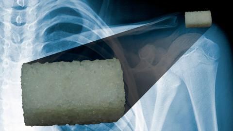 Crean biomaterial que se imprime en 3D para regenerar hueso
